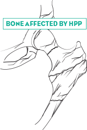 Bone affected by HPP IMAGE